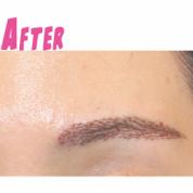 眉毛移植が一般化?