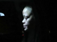 リアーナ、電動スクーターによる事故で顔面を負傷。過去の暴行事件を連想したファンから心配の声が続出