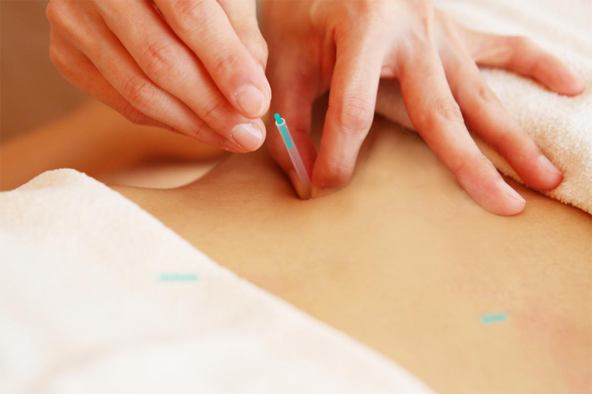 「鍼」のプログラムでは、鍼灸セラピストによるカウンセリングを受けた後、不安や疑問を解消してから施術が行われる